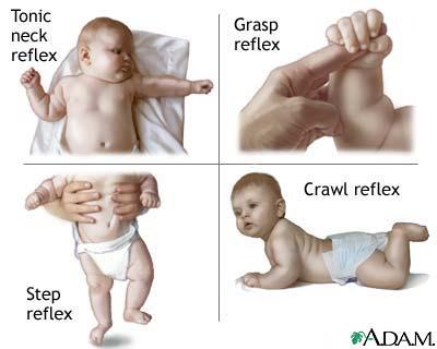 http://lauranyman.webs.com/infantile-reflexes.jpg